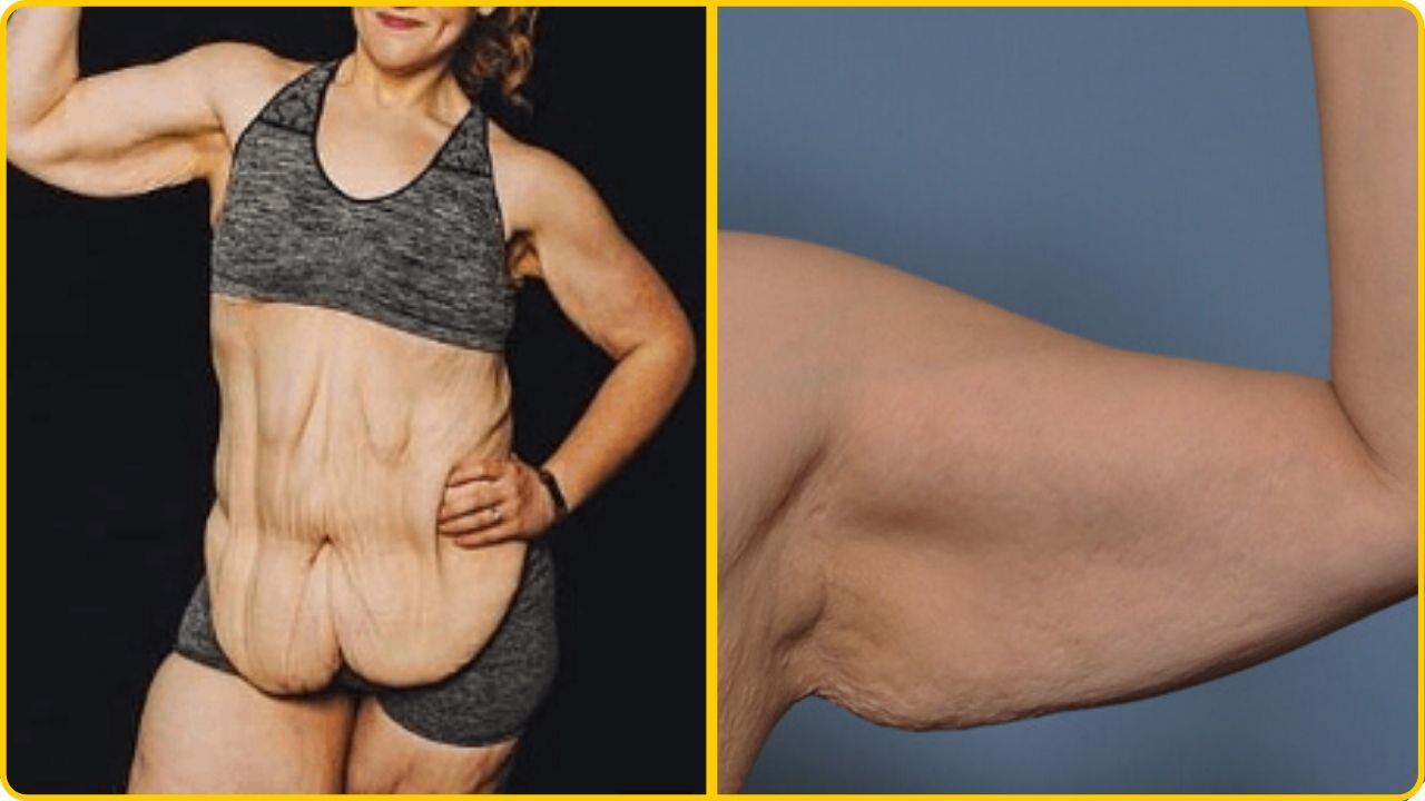 excessive loose skin after weight loss