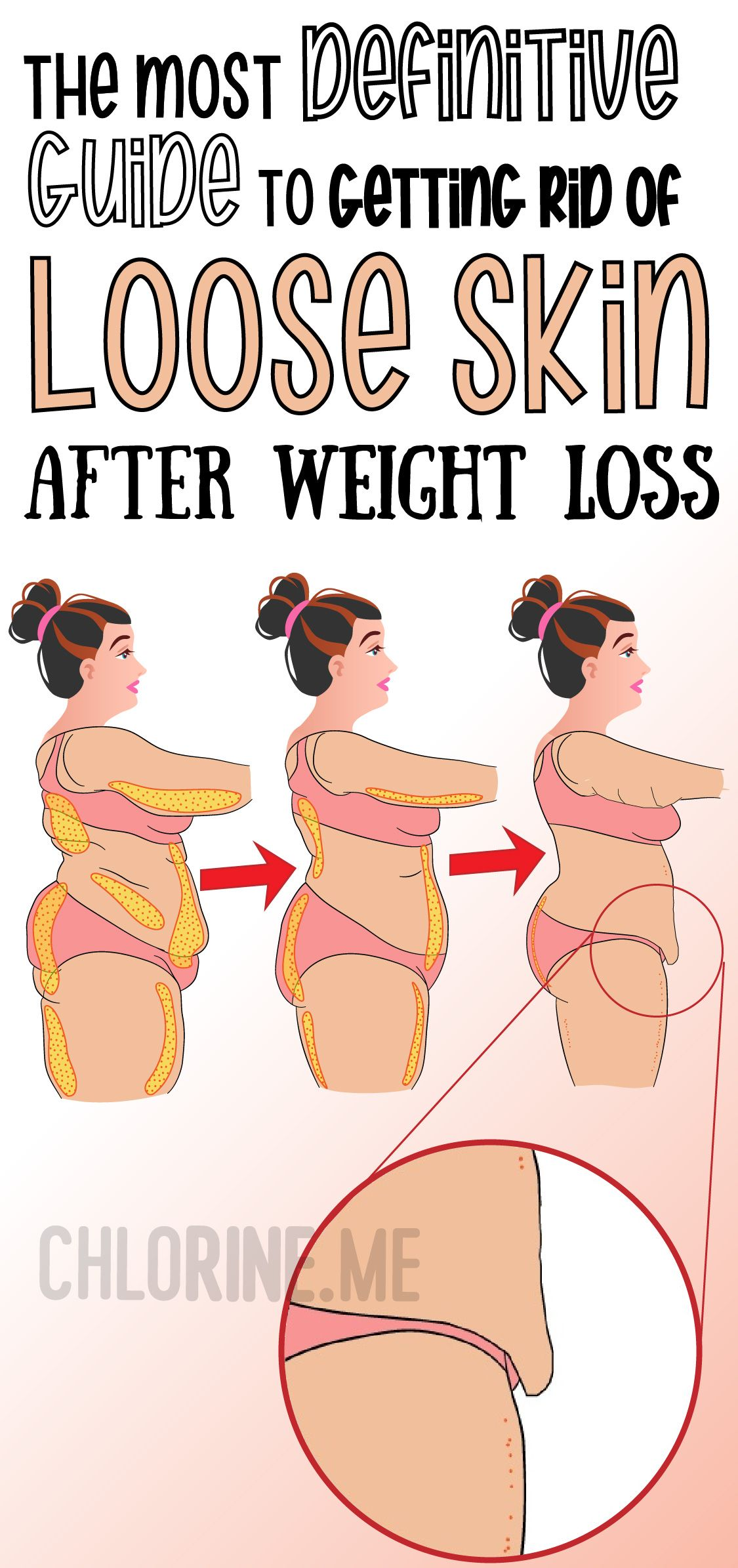 get rid of loose skin after weight loss the most definitive guide
