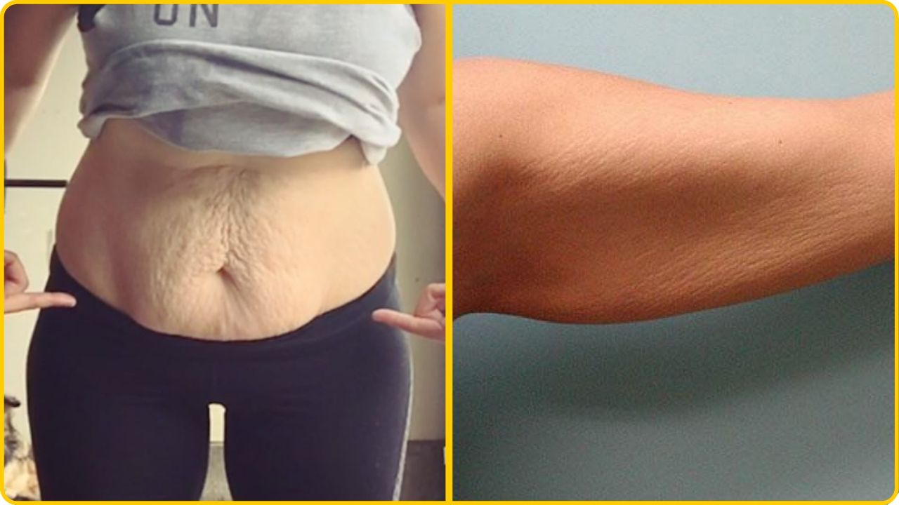 tighten loose skin after weight loss