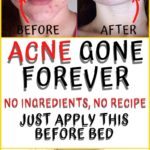 best cystic acne remedy