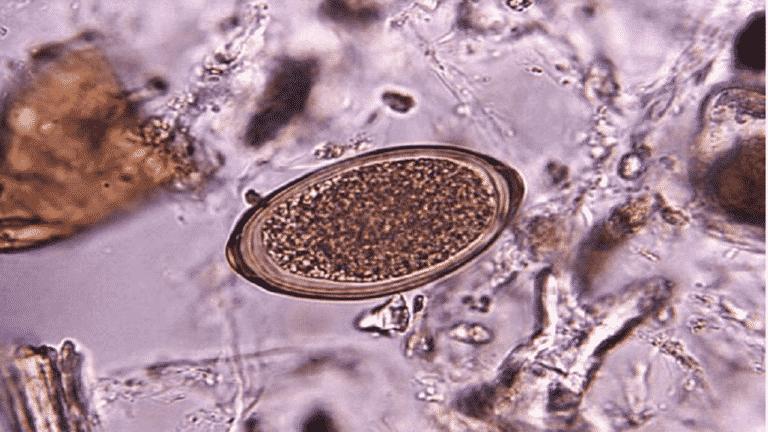 stomach parasite history
