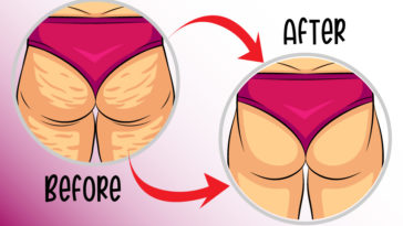 home remedies to get rid of cellulite-01