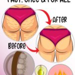 how to get rid of cellulite home remedies