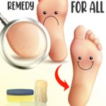 fix cracked heels home remedy