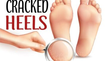 FIX CRACKED HEELS HOME REMEDIES OVERNIGHT-01
