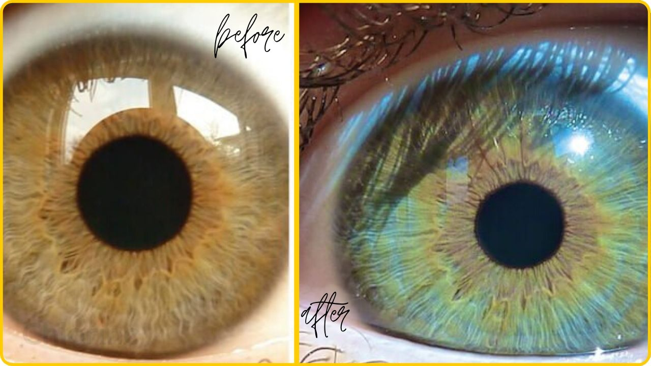 permenantly change eye color