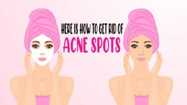 here is how to get rid of acne spots acne-01