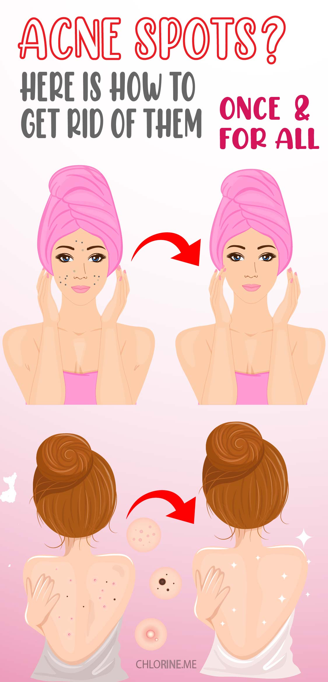 how to get rid of acne spots-01