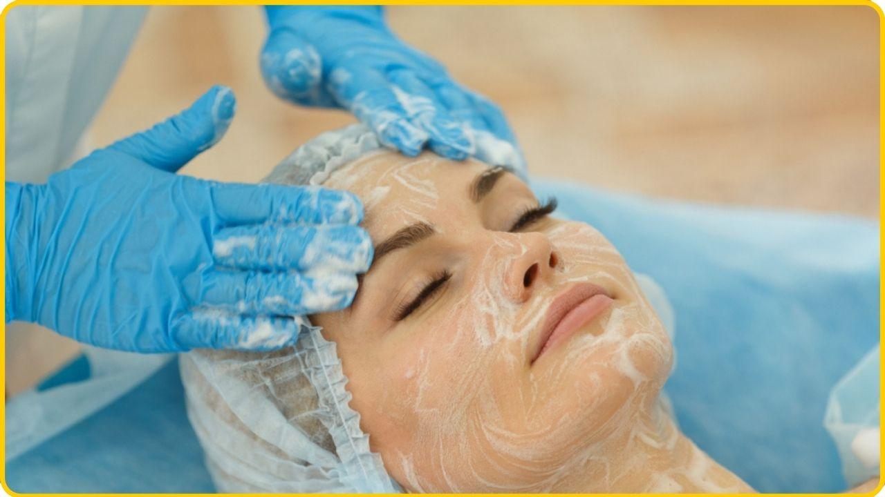 chemical peeling to bust wrinkles