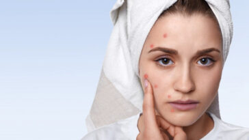 what causes acne, diagnosis treatment and home remedies