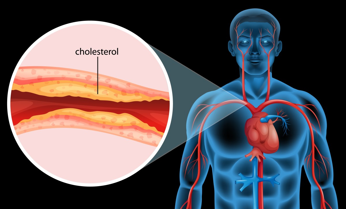 High Cholesterol 5 Great Drink Recipes for Vascular Health