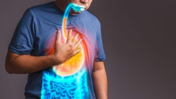 Heartburn Home Remedies Symptoms, Causes, and Prevention